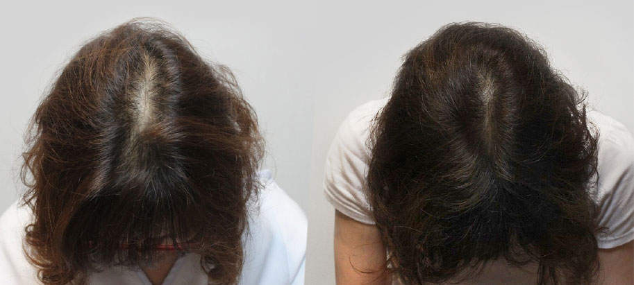 Hair loss Before / After Kerastem